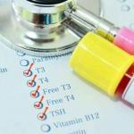 آزمایش کم کاری تیروئید تشخیص با آزمایش خون و معاینه بالینی