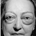 درمان تیروئید چشمی