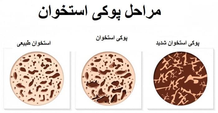 انواع پوکی استخوان
