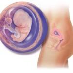 پرمویی در حاملگی