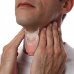 تیروئیدیت هاشیموتو بیماری خود ایمنی التهاب مزمن تیروئید