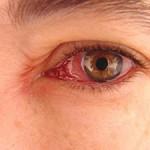 عوارض چشمی ناشی از مرض قند