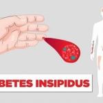 روش درمان دیابت بی مزه تشخیص با آزمایش خون و ادرار بیمار-min