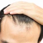 ریزش موی هورمونی