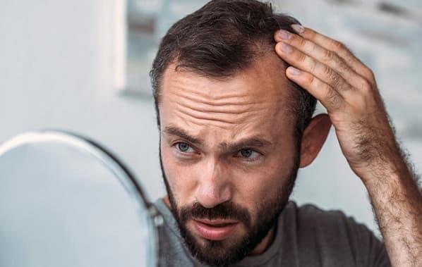 علائم ریزش موی ناشی از تیروئید