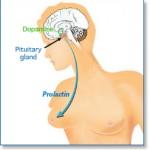 علل پرولاکتینوما
