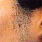 درمان هورمونی پرمویی و موهای زائد
