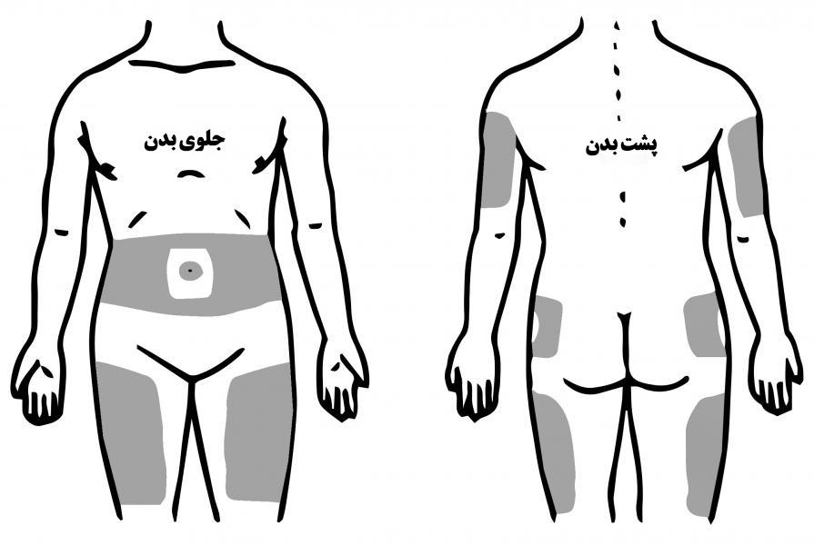 ناحیههای تزریق انسولین