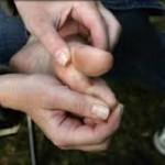 علائم مشکوک به زخم پای دیابتی
