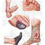 نشانه های پای دیابتی