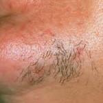موهای ضخیم در زنان