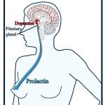 درمان پرولاکتینوما به روش جراحی