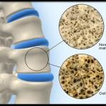 بیماری های متابولیک استخوان