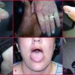 بیماری های مرتبط با کم کاری تیروئید