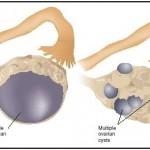 کیست تخمدان