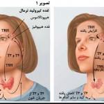 کم کاری تیروئید: علائم، عوارض و درمان