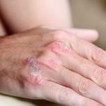 بیماری صدف پوستی یا پسوریازیس