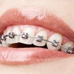 ارتودنسی متحرک دندان