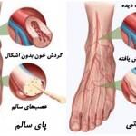 پای دیابتی و درمان زخم پای دیابتی