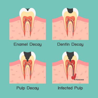 stages-of-toothache